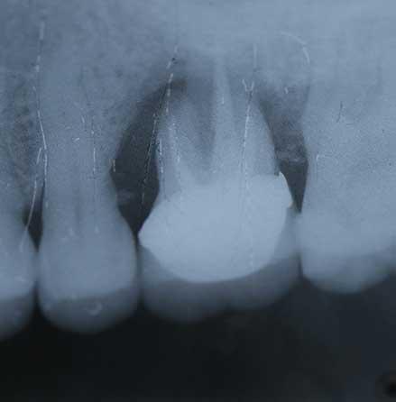 Implant-4-01