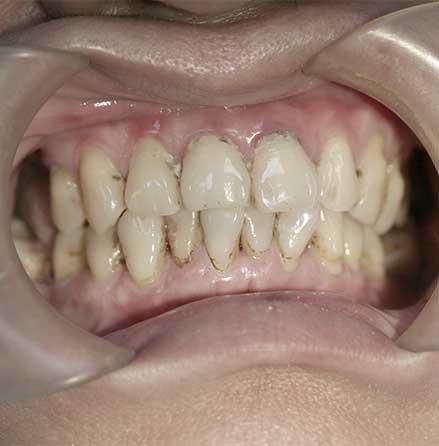 Implant-5-01