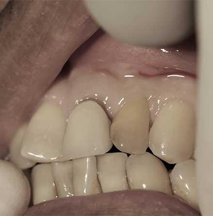 Implant-7-01